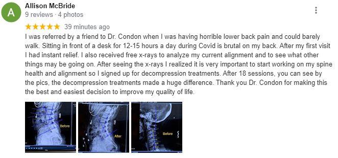 Chiropractor North Scottsdale AZ Ally Spine Center Patient Testimonial