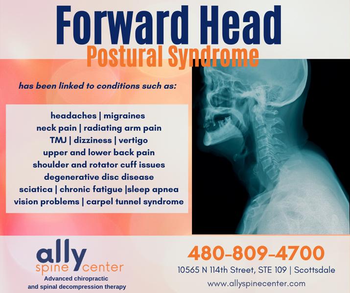 Chiropractic Scottsdale AZ Forward Head Syndrome